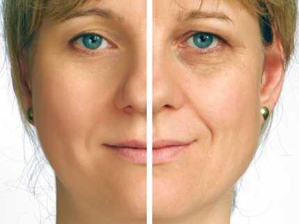 Laser Skin Resurfacing 1