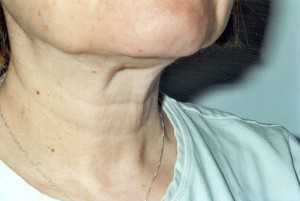 how to get rid of turkey neck 3a