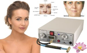 non surgical facelift industrial 3a