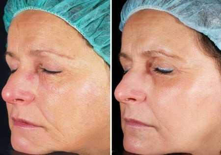 laser for skin