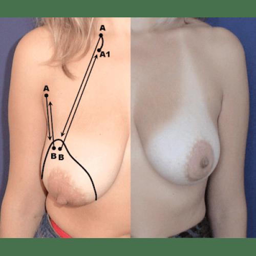 mini breast lift