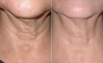laser for skin tightening