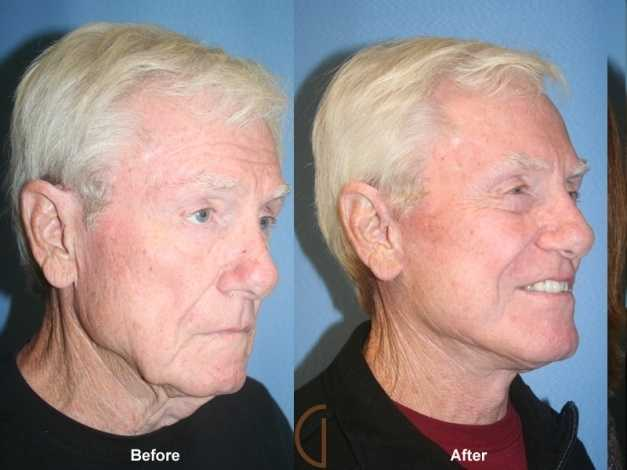 mini facelift before and after photos