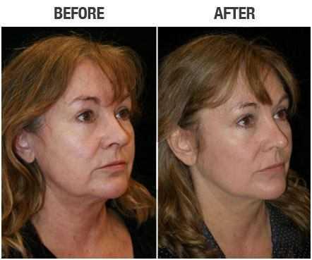 mini face lift recovery