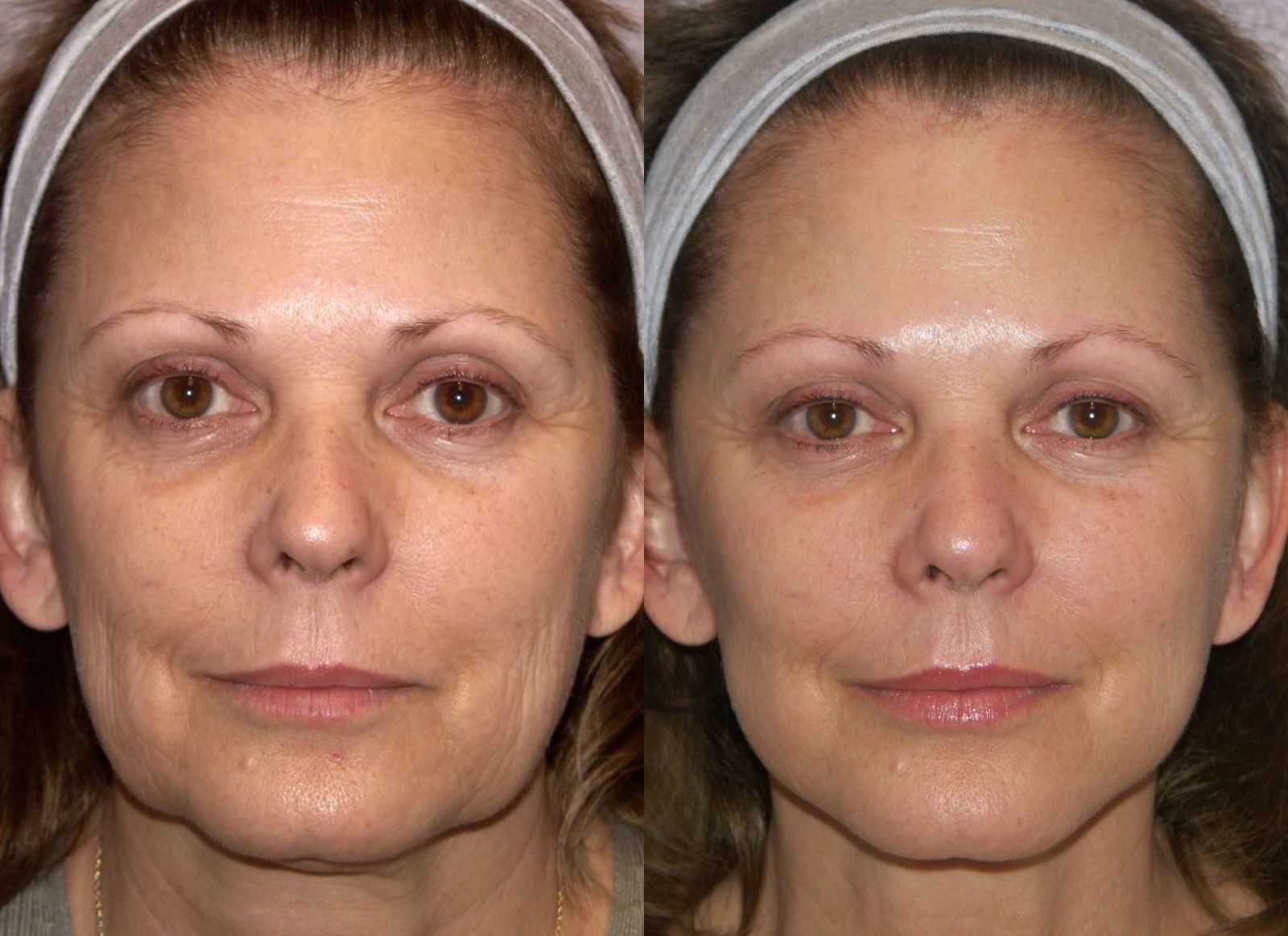 Facial swelling face lift are