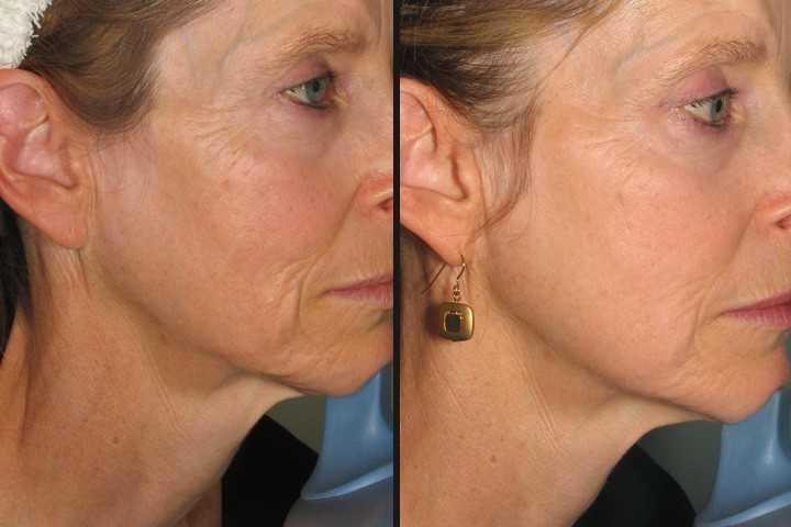 Laser Facial Skin Tightening