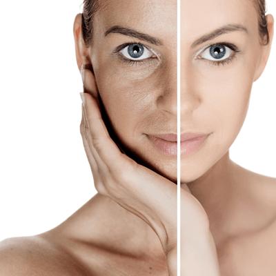 best way to tighten skin