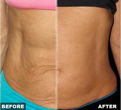 stomach tightening cream that works