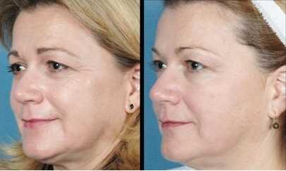 rf skin tightening cost