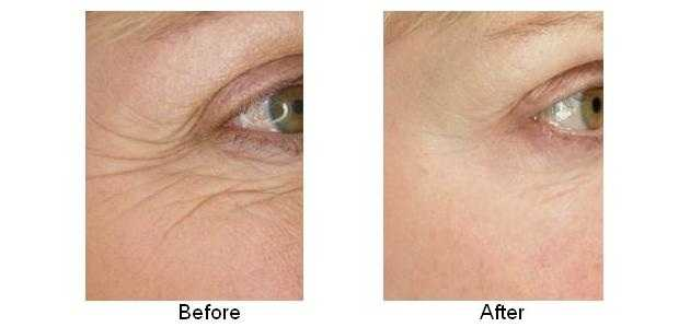 radio frequency wrinkle treatment reviews