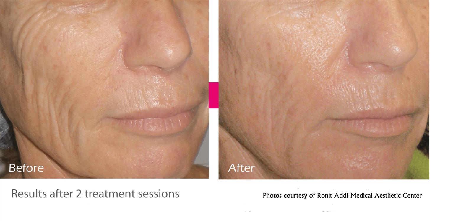 best skin tightening cream for face