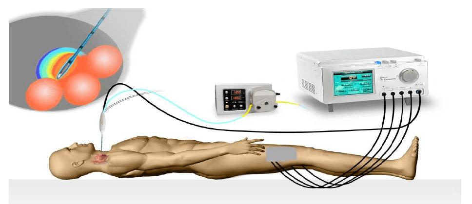 radio frequency procedure