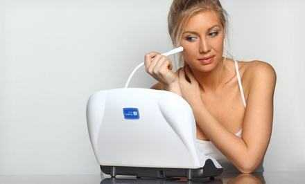 at home microdermabrasion machine