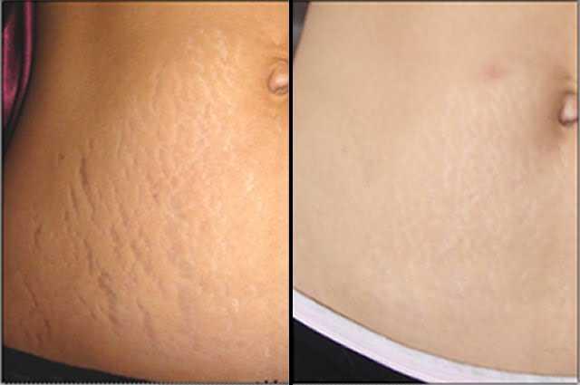 lighten stretch marks