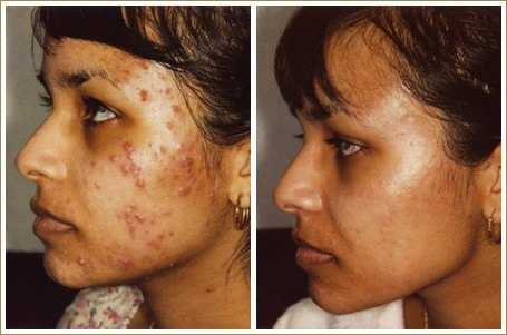 acne scars problem