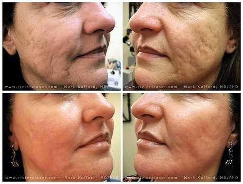 face pores problem