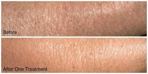 lightens skin texture