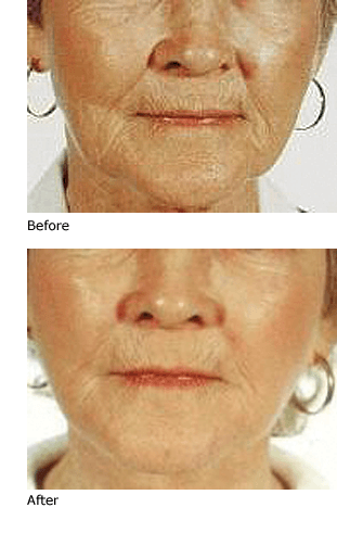 lip wrinkles treatment