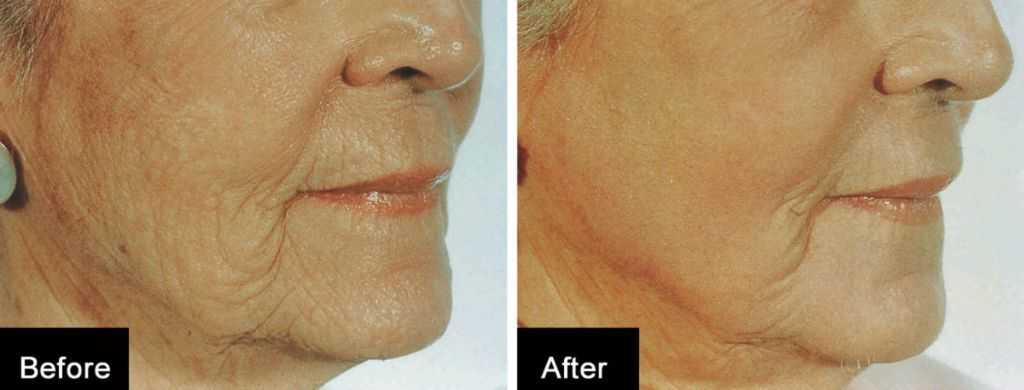 sagging skin treatment