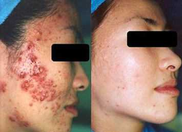 15 Microdermabrasion Before and After Pictures that are Utterly ...