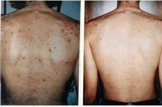 acne on backside