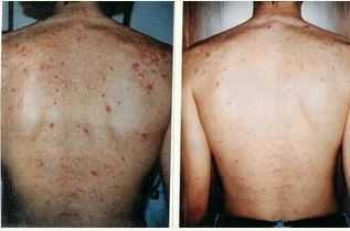 acne on backside