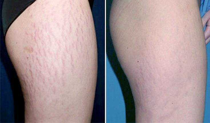 5 Great Things Microdermabrasion Can Do For Stretch Marks