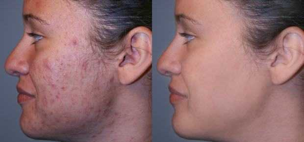 Image result for beautyfull girl pimples before and after