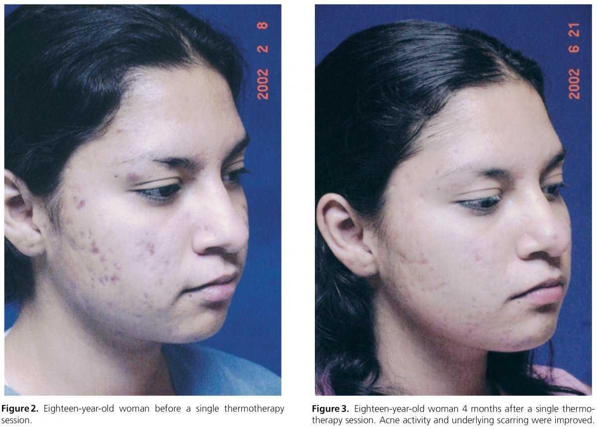 transformation of rf treatment