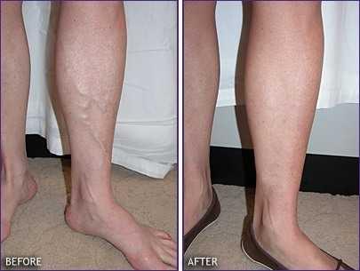 rf skin tightening issues