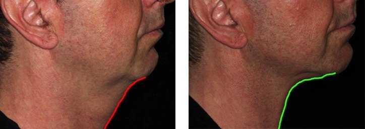 rf treatment for acne scars
