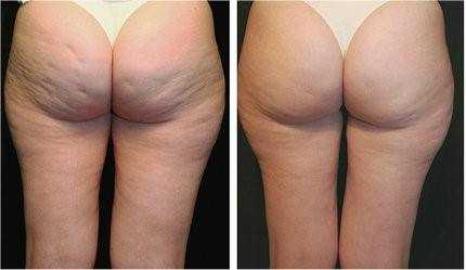 rf treatment for cellulite