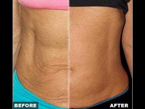 treatment for sagging skin