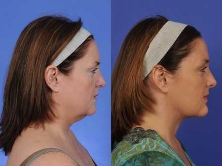 rf skin tightening for neck wrinkles