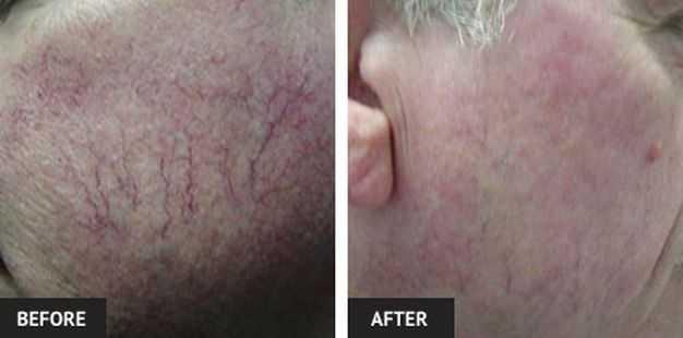 rf skin tihgtening treatment
