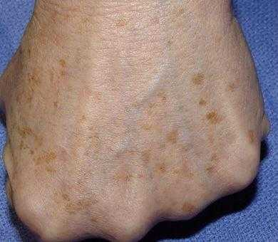 what are brown age spots