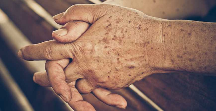 brown age spots on skin