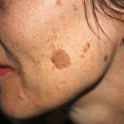 Spots Brown facial