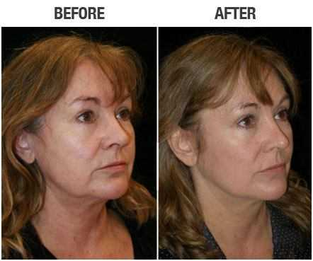 mini face lift recovery