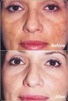 before and after microdermabrasion results