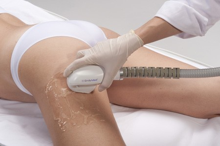 skin tightening treatments for legs