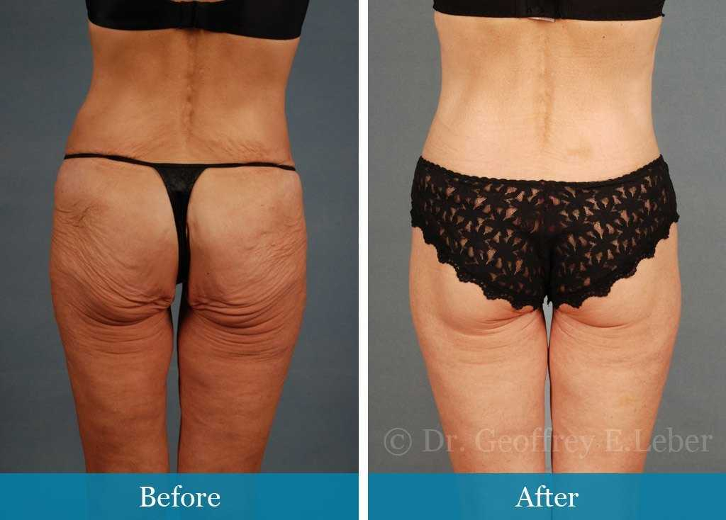 skin tightening procedures for legs